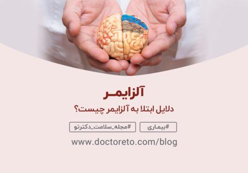 آلزایمر
